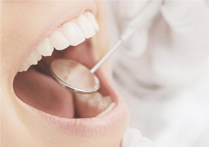 Dentista osserva la dentatura di una paziente attraverso uno specchietto